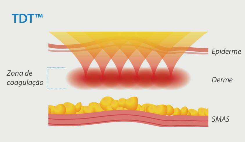 Imagem utilizada para mostrar a tecnologia do tratamento por difusão térmica